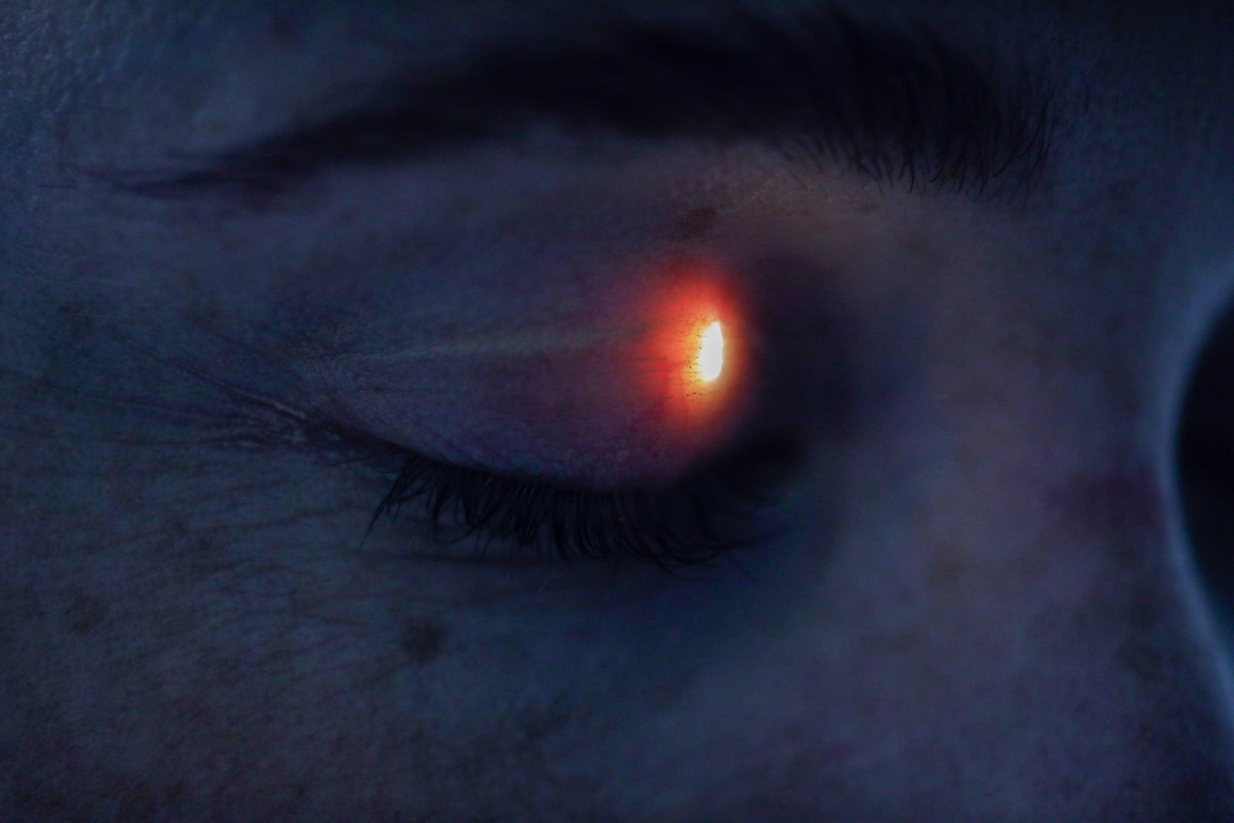 Kimm Saatvedt – SES Optikk 2020